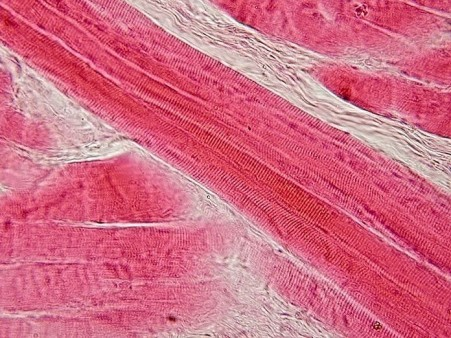 Scientists identify which genes are active in muscles of men and women