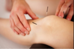 Study Finds Acupuncture Does Not Improve Chronic Knee Pain