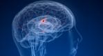 AF and the risk of stroke