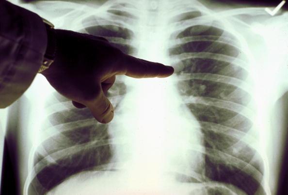 A view of a close up of a lung x-ray of a cigarette smoker.