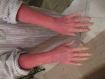A patient suffering from Red burning skin syndrome